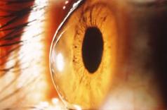 円錐角膜イメージ